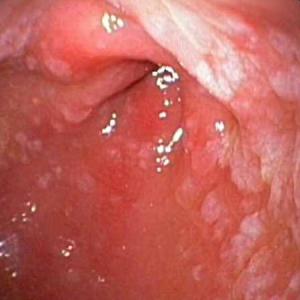 Лечение кишечной метаплазии слизистой желудка