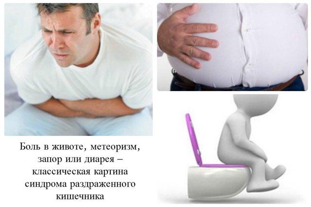 Синдром раздраженного кишечника — симптомы и лечение болезни