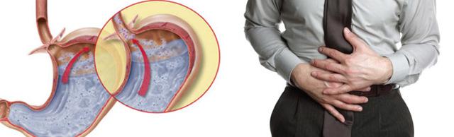 Билиарный рефлюкс гастрит - что это такое, симптомы и лечение