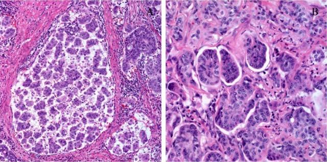 Классификация и виды рака желудка, клинические и атипичные формы