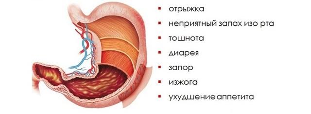 Что такое очаговый атрофический гастрит, симптомы, лечение народными средствами и диета