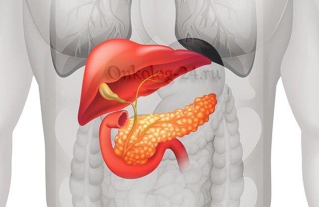 Рак поджелудочной железы — причины, симптомы и признаки, лечение аденокарциномы