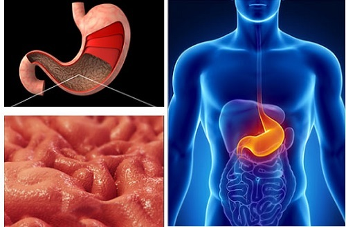 Гастрит с пониженной кислотностью желудка - симптомы, лечение и диета