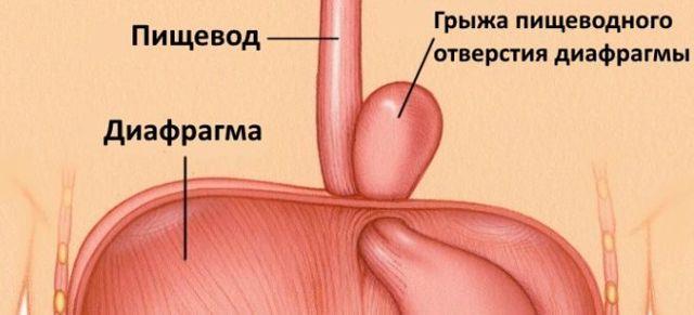 Грыжа пищевода - симптомы и признаки, диагностика, лечение и питание