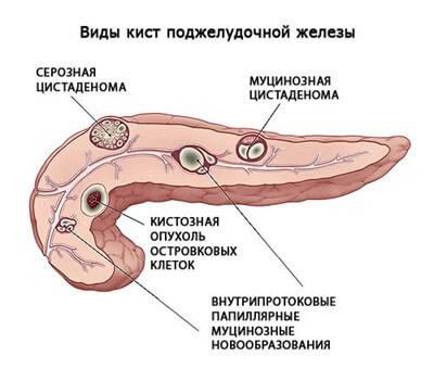 Питание и диета при лечении болезни поджелудочной железы и болях в желудке