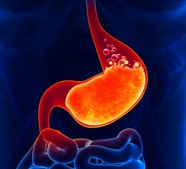 Рефлюкс гастрит желудка - причины, симптомы, лечение препаратами и народными средствами, диета