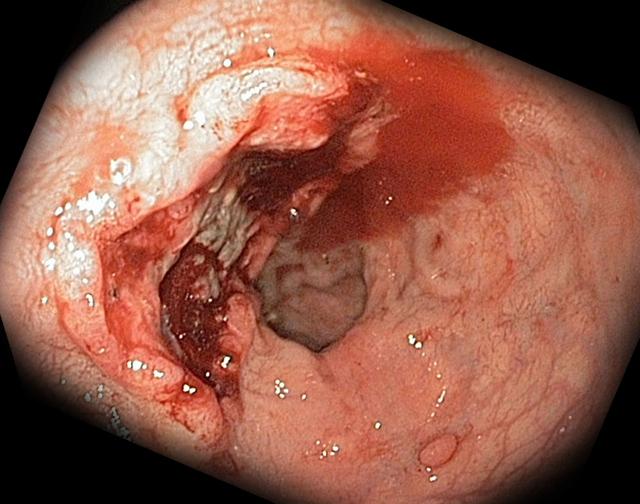 Язвенная болезнь желудка и двенадцатиперстной кишки - симптомы и признаки, лечение и профилактика