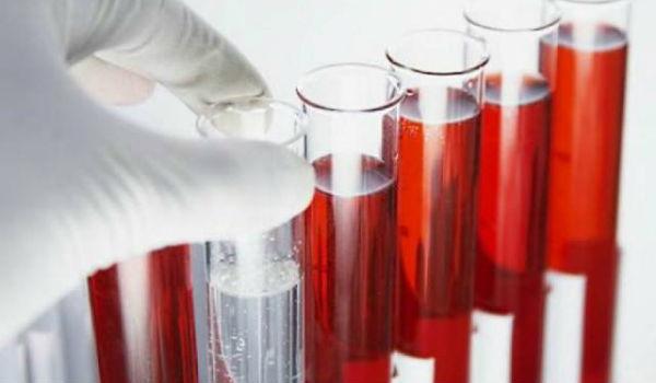 Анализы на хеликобактер пилори (helicobacter pylori) - как сдавать, какие лучше и точнее