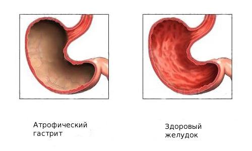 Что такое хронический атрофический гастрит - симптомы, лечение народными средствами и диета