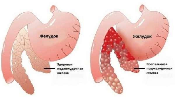 Скопление газов в желудке и кишечнике - причины, симптомы и лечение вздутия живота у взрослых