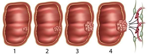 Рак кишечника - причины, симптомы, стадии, диагностика и лечение