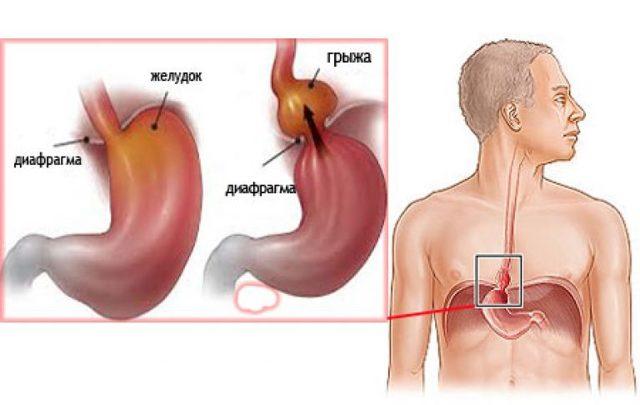 Грыжа пищеводного отверстия диафрагмы - симптомы и признаки, лечение и диета