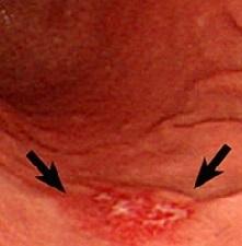 Эрозивный гастрит желудка - причины, признаки и симптомы, лечение и диета