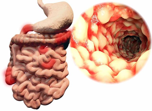 Дивертикулез кишечника - причины, симптомы, лечение и диета