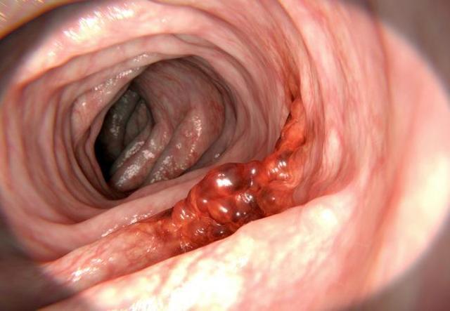 Рак сигмовидной кишки - стадии, симптомы и признаки, лечение и диета