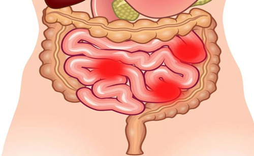 Что такое дискинезия кишечника - симптомы и лечение заболевания