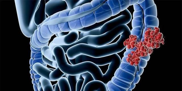 Рак желудка - первые симптомы и признаки, диагностика, лечение и профилактика