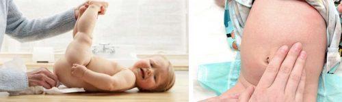 Мыло от запора новорожденному