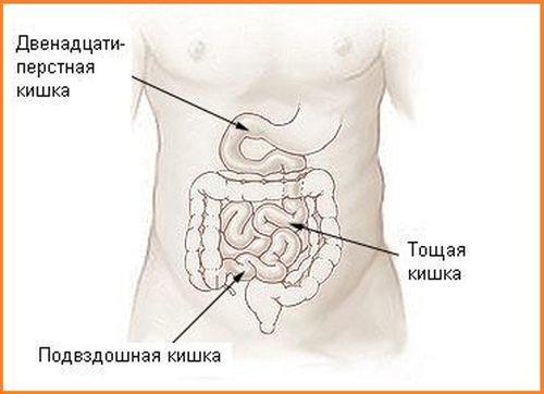 Рак двенадцатиперстной кишки - симптомы и признаки на ранней стадии, способы лечения