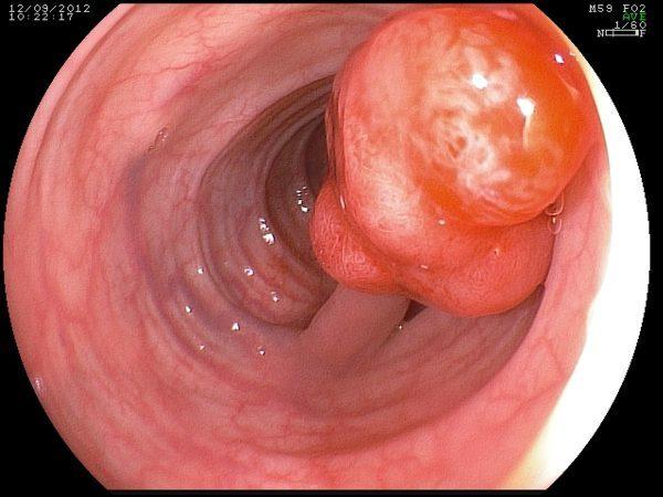 Что такое полипы в кишечнике — причины, признаки и лечение болезни