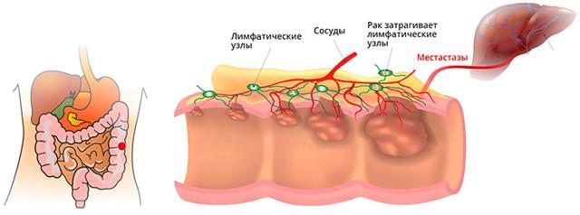 Рак прямой кишки - причины, симптомы и признаки, диагностика, лечение и диета