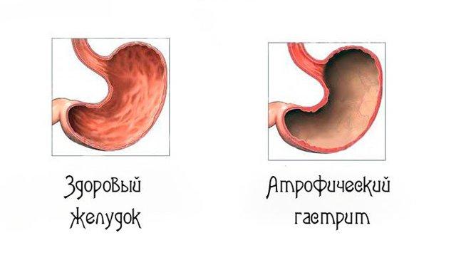 Что такое субатрофический гастрит, симптомы и лечение хронического заболевания