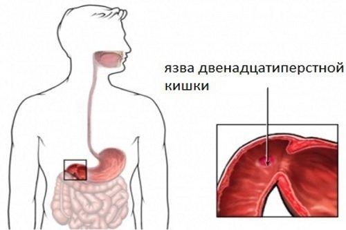 Эрозия желудка и двенадцатиперстной кишки - симптомы, лечение и диета