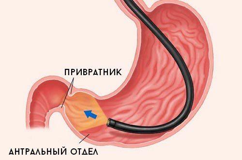 Поверхностный антрум гастрит — что это такое, симптомы, лечение