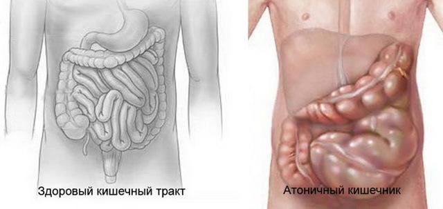 Атония толстого кишечника - причины, симптомы и лечение