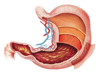 Эритематозная гастропатия - симптомы, лечение народными средствами, диета