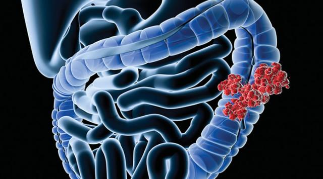 Рак ободочной кишки - классификация, первые симптомы, диагностика и лечение