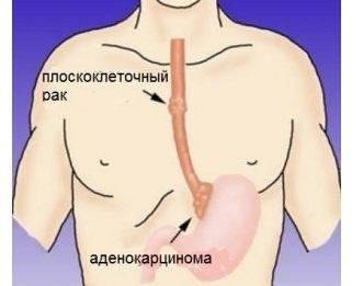 Стадии рака пищевода, прогнозы выживаемости, классификация и профилактика