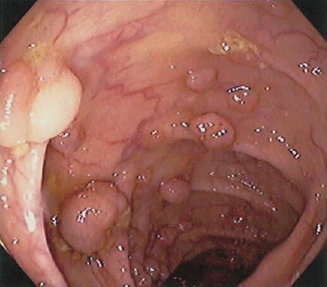Рак толстой кишки - причины, признаки и симптомы, диагностика, лечение и диета