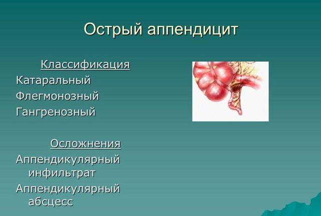 Аппендикулярный инфильтрат у детей