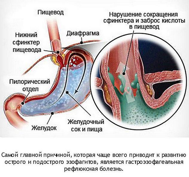 Лечение рефлюкс-эзофагита препаратами: основные виды и правила применения