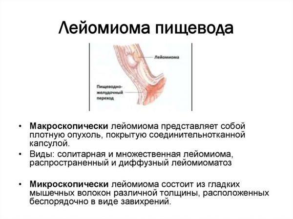 Лейомиома пищевода: симптомы, диагностика и методы лечения