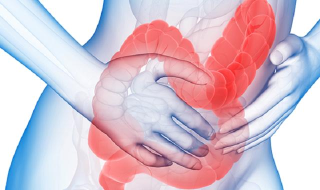 Синдром раздраженного кишечника: лечение народными средствами, как лечить СРК в домашних условиях травами, симптомы, фитотерапия быстро и эффективно