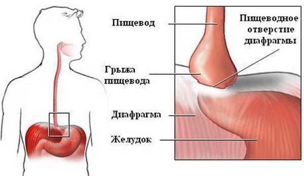 Скользящая грыжа пищеводного отверстия диафрагмы: симптомы, степени, лечение