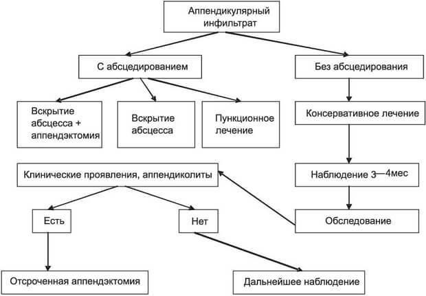 Аппендикулярный инфильтрат: диагностика, лечение, операция