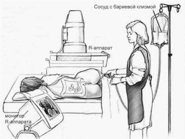 Как делается ирригоскопия кишечника видео