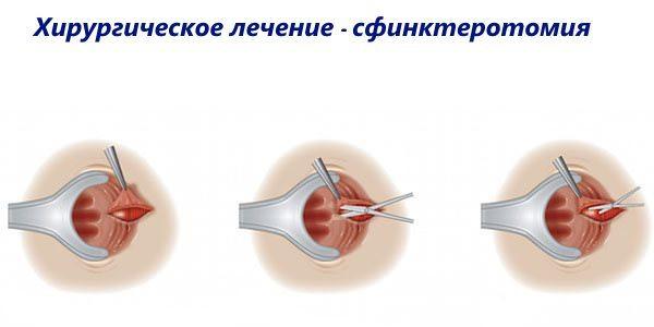 Спазм сфинктера прямой кишки: симптомы и лечение колик у женщин, причины спазмирования сфинктера, как снять при помощи спазмолитиков, свечей
