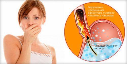 Как узнать в домашних условиях повышена или понижена кислотность желудка?