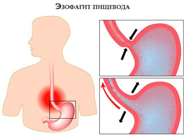 Эзофагит: причины, стадии, диагностика и методы лечения