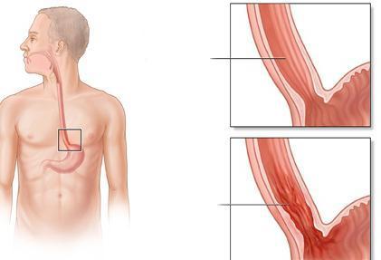 Эрозивный эзофагит: что это такое, симптомы и лечение