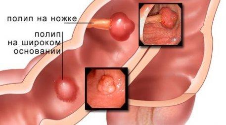 Полипы в кишечнике: симптомы, лечение, удаление и народные рецепты