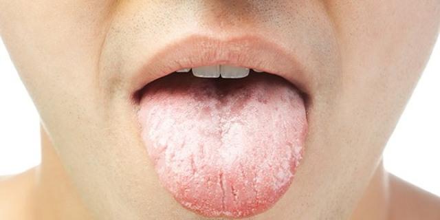 Признаки аппендицита у мужчин: описание симптомов у взрослых, как проверить, первые проявления в 30 и 40 лет, как болит и как проявляется воспаление аппендикса