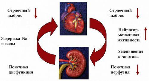 Асцит при циррозе печени: сколько живут больные с таким диагнозом?