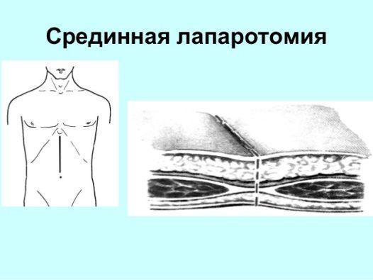 Острый перитонит: симптомы гнойного или местного заболевания у взрослых и клинические рекомендации по лечению его осложнений
