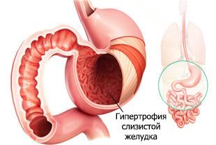Гипертрофический гастрит: причины, симптомы и лечение