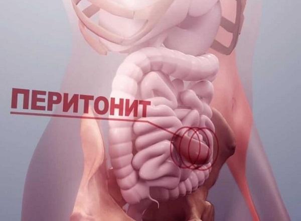 Острый перитонит: виды, симптомы и методы лечения